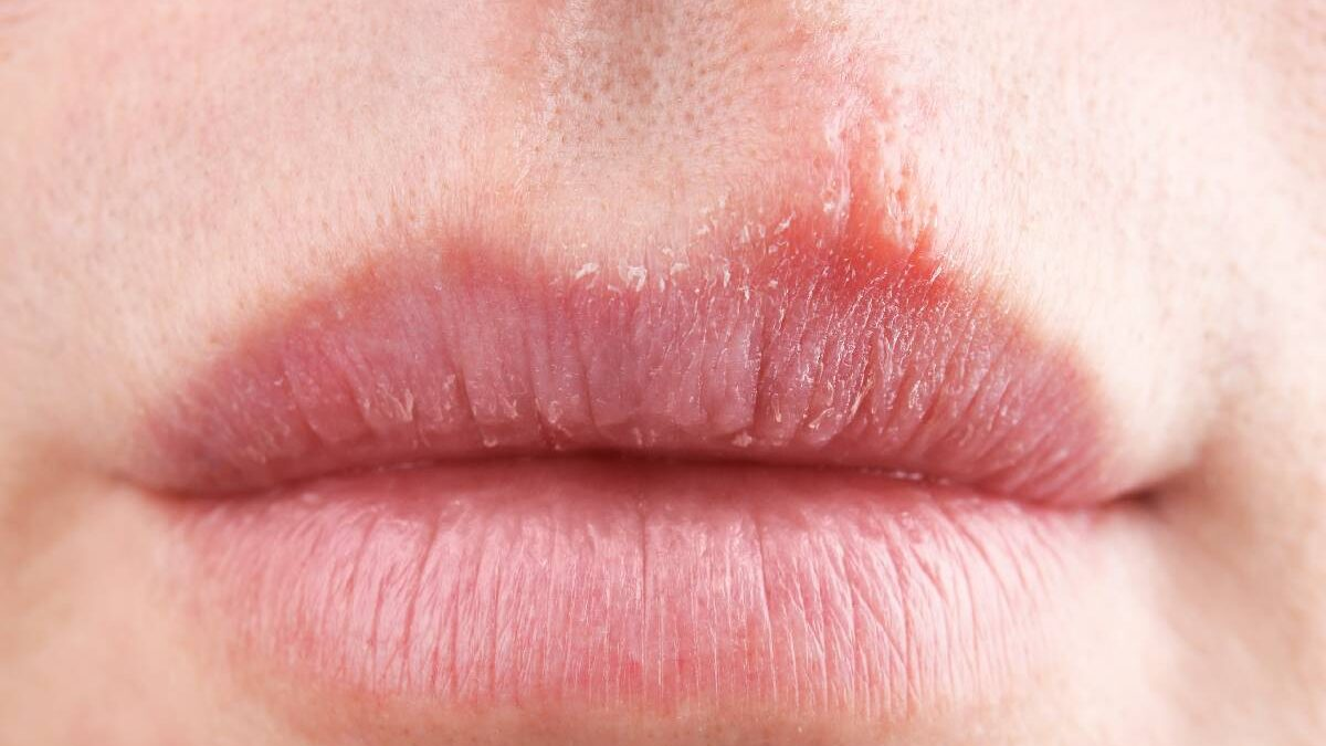 Pimple On Lip Line – Causes, Treatment, and More