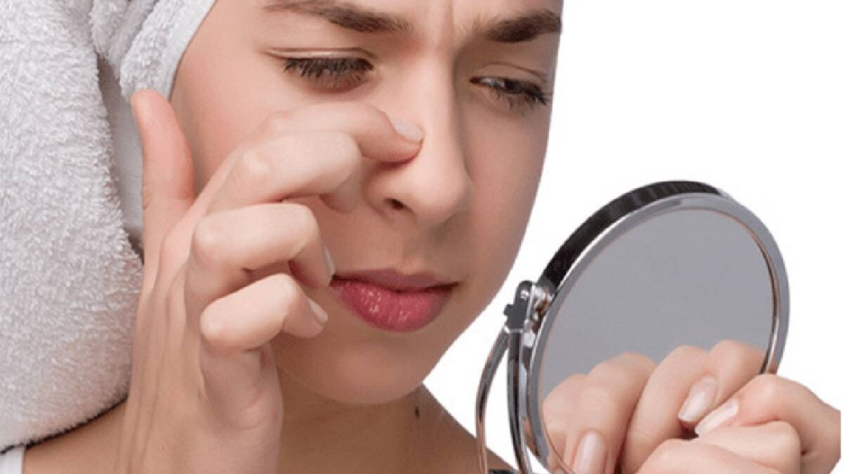 Pimple On Nose – Hormonal Imbalances, Home Remedies, and More