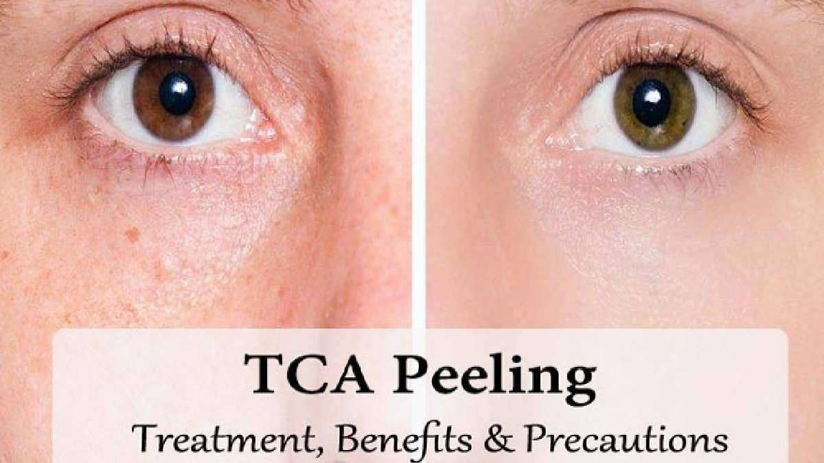 TCA Peel – Strengths, Peel Benefits, Acne Scars, and More