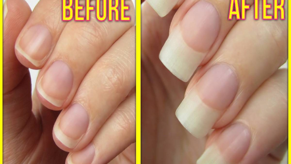 How to Grow Nails Fast? – Food, Lemon juice, Coconut oil, and More