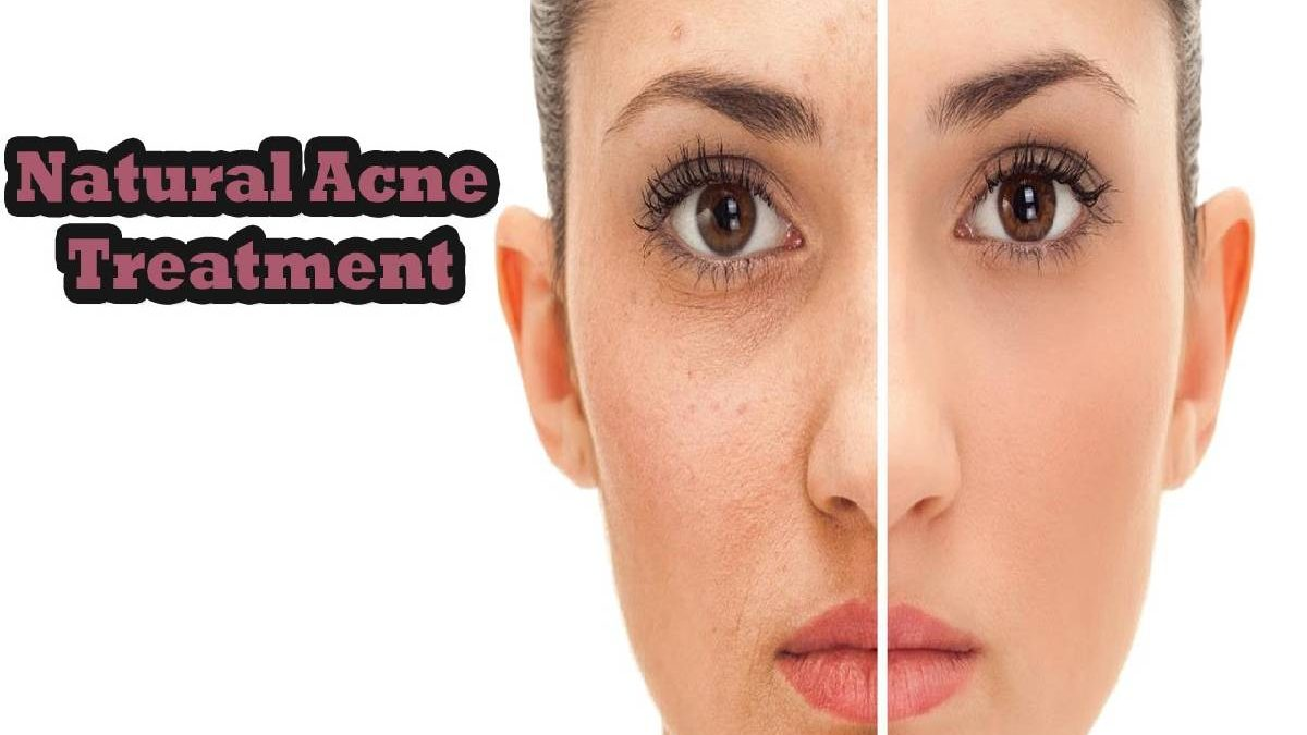 Natural Acne Treatment – Causes Acne, The 4 Home Remedies, and More
